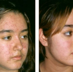 Amazing results kojic acne removing soap